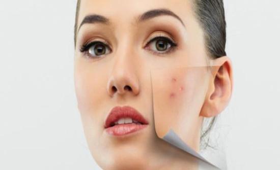 علاج حب الشباب وأنواعه وكيفية التخلص من آثاره على الوجه