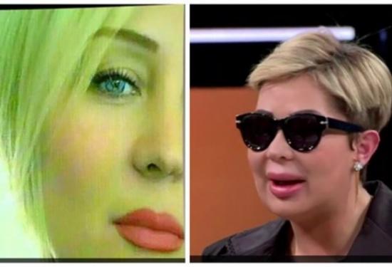 ملكة جمال في لبنان تكشف عن وجهها للمرّة الأولى بعدما غيّرت عمليات التجميل ملامحها!