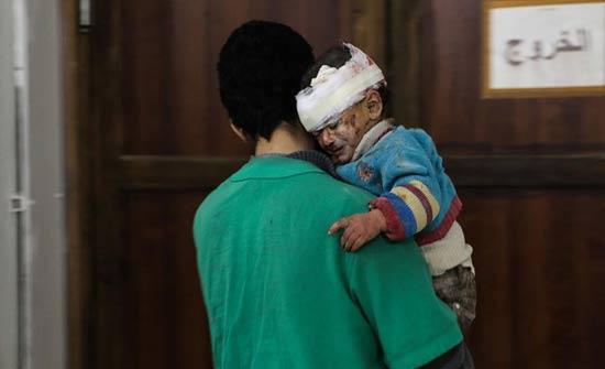 سوريا.. مقتل أكثر من 30 طفلا في 14 يوما بالغوطة الشرقية