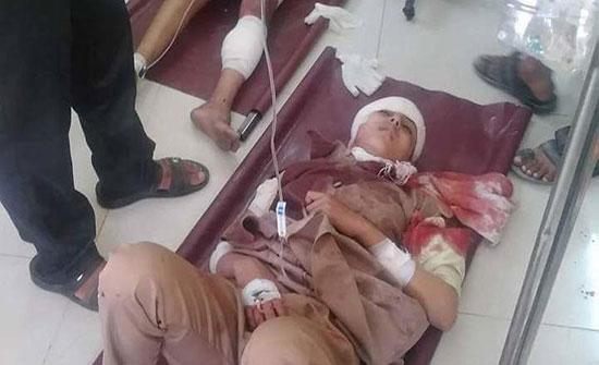 بالصور : اليمن.. مقتل وإصابة طالبات بقصف حوثي على مدرسة في تعز