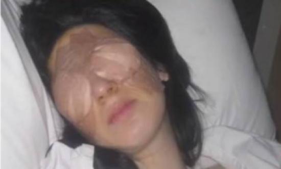 مرض نادر وغريب.. عينا هذه المرأة تقفلان 3 أيام متتالية!