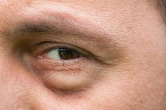 علاج انتفاخ تحت العين بـ ١٨ وصفة