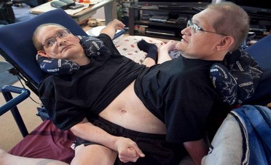 بالصور : روني ودوني.. أطول التوائم الملتصقة عمرا في التاريخ