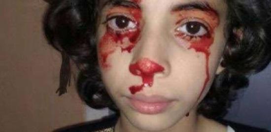 فيديو لمرض نادر وغريب في المغرب.. طفلة تنزف دما من كل جسدها