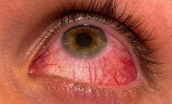 أسباب نزيف العين وطرق العلاج