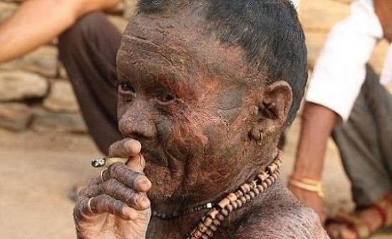 الرجل الأفعى يبدل جلده كل 10 أيام