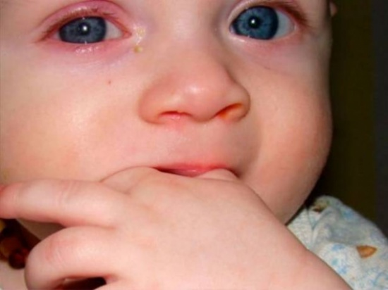كي لا يُصاب طفلكم بالعمى... لا تكرّروا الخطأ الشائع الذي ارتكبه والدا هذه الطفلة