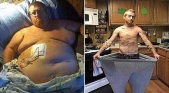 فقد 170 كيلو من وزنه بعد أن شارف على الموت