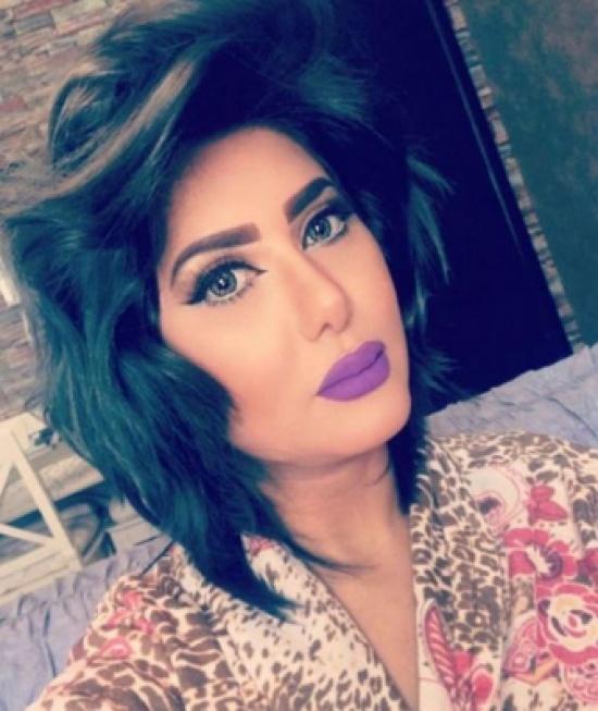 شاهد.. ملاك الكويتية تجري عمليتين تجميل وتغير ملامح وجهها.. لاحظوا الفرق!