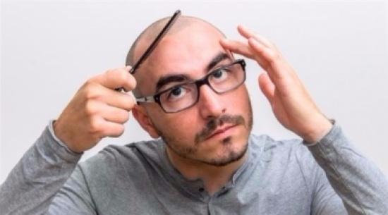 لهذه الأسباب لا تخجل من حلق كامل شعر رأسك