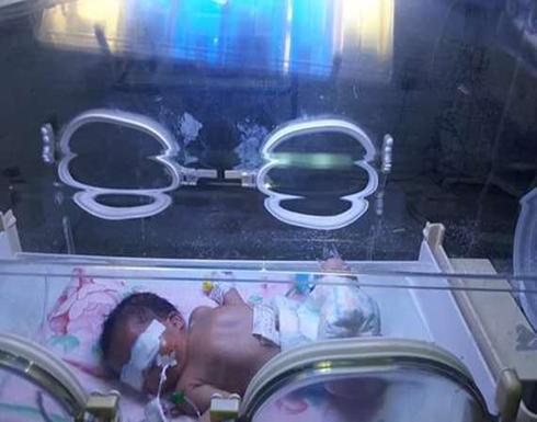 بالصور : إنقاذ طفلة من الموت بعد ولادتها بأنف مسدود في مصر