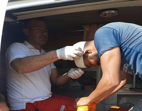 إصابة عشرات الفلسطينيين بهجوم للمستوطنين جنوب الخليل .. بالفيديو