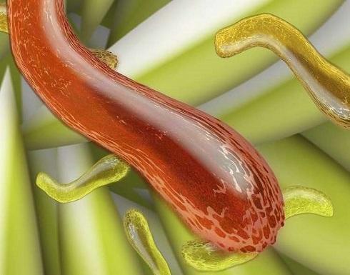 """الأطباء يحذرون من """"سوبر بكتيريا"""" تسبب العقم"""