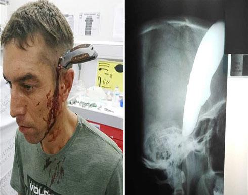 مجرمان غرزا السكين في رأسه... فتوجه إلى المستشفى ليُعالج نفسه (صورة)