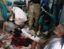 بالفيديو : مستشفيات حلب تعلن عجزها عن استقبال المزيد من الجرحى