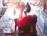 لحظة انفجار هاتف في وجه رجل حاول استبدال البطارية (فيديو)