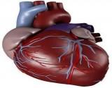 عصب القلب الحساس حالة فسيولوجية تتسبب بغيبوبة