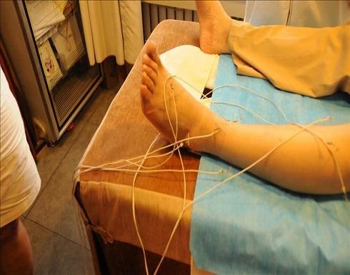 الطب الصيني التقليدي أثبت فعالية في علاج مرضى كورونا