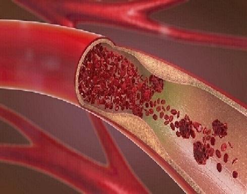 علامة في عينيك تدل على أن مستويات الكوليسترول لديك مرتفعة للغاية!