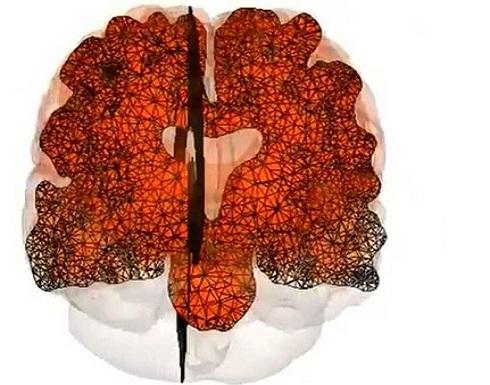 لقاح جديد للقضاء على مرض الزهايمر