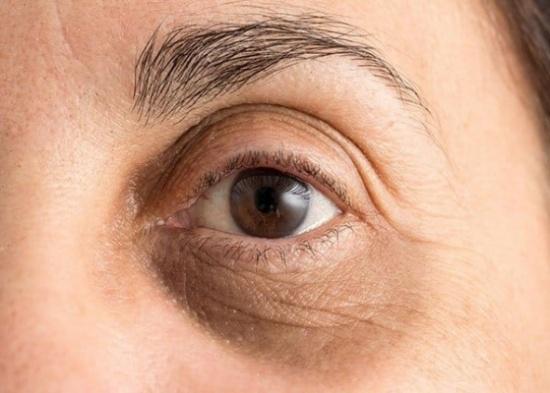 لمنع ظهور الهالات السوداء.. احذر 8 عادات شائعة