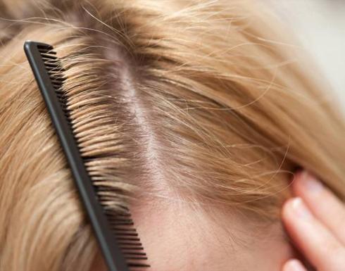 وصفة طبيعية سهلة للتخلص من قشرة الشعر