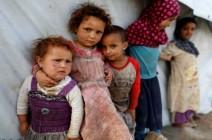 أطفال تعز اليمنية.. بين الموت جوعاً أو قصفاً
