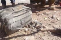 هذا ما خلفه قصف إدلب.. يد تمسك بحقيبة