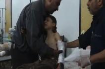 عشرات الجرحى بينهم 10 شهداء نتيجة قصف قوات النظام على مدينة دوما وبلدة مسرابا اليوم