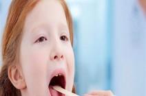 استئصال اللوزتين لدى الأطفال: سببه ونصائح للوقاية بعده