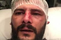 """بالفيديو:المواطن الذي تعرض للاعتداء في البحرين يروي التفاصيل ..""""هذا اردني اضربوه"""""""