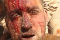 صور : قتلى وأسرى من حزب الله في هجوم لتنظيم الدولة شرق تدمر