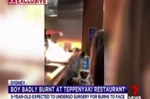 فيديو : مهارة طاهي العشاء تنتهي باحتراق الأسرة في استراليا