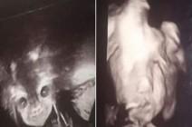 """بالصور : """"الجنين الشيطان"""" يثير القلق قبل الولادة.. هل الحالة طبيعية؟!"""