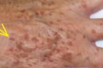 إليكم طريقة سحرية لتتخلصوا من بقع الجلد البنية المحرجة!