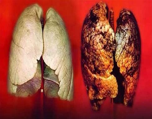 سرطان الرئة أكثر أنواع السرطان انتشاراً.. هذا هو سببه المباشر والأخطر!