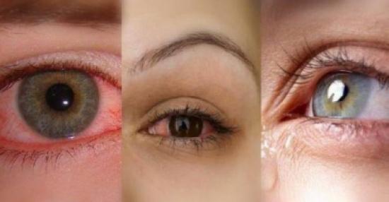 كيف نتخلص من مشكلة جفاف العين؟