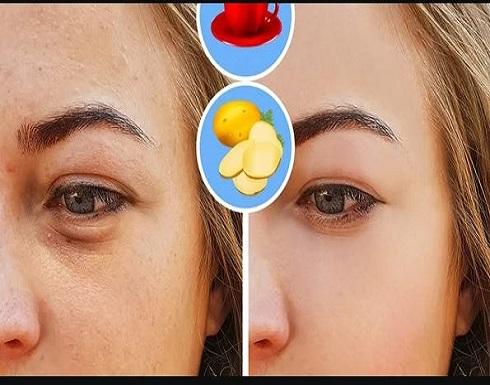 بـ القهوة.. وصفة سريعة لعلاج الهالات السوداء حول العين