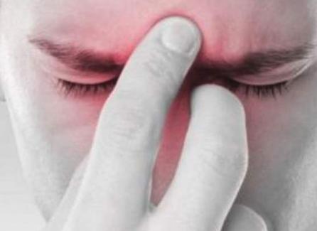 إلتهاب الجيوب الأنفية المزمن يزيد من خطر الاكتئاب