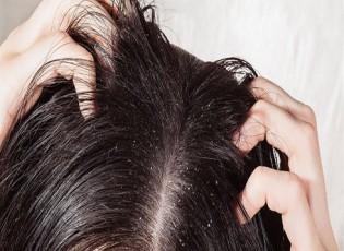 ابتعدي عن هذه الأطعمة لحماية شعرك من القشرة..  منها الوجبات السريعة