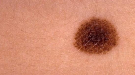 متى تنذر الشامة بسرطان الجلد؟