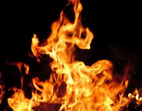 اربد : وفاة شاب حرقا .. والتحقيق جار