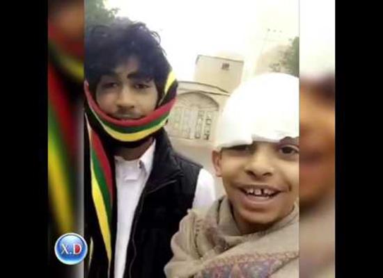 بالفيديو: أبو سن أراد تجريب التفحيط فإنقلبت سيارته وفتح رأسه