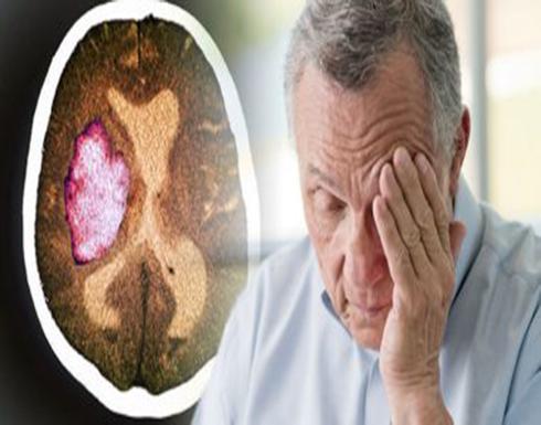 دراسة: السكتة الدماغية الصامتة أكثر شيوعاً فى المرضى الأكبر سناً