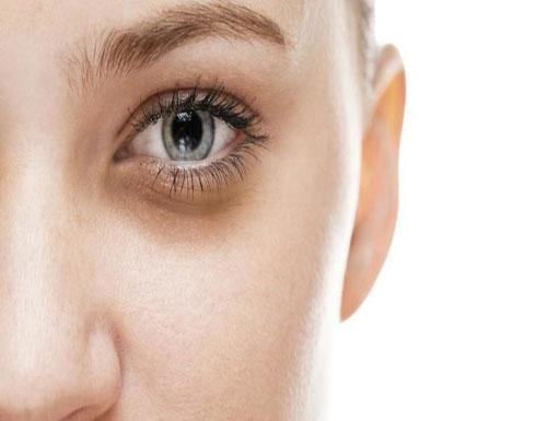 فوائد استخدام الكركم لمنطقة حول العينين