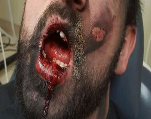 بالفيديو : مصرع شاب انفجرت سيجارة إلكترونية في فمه!