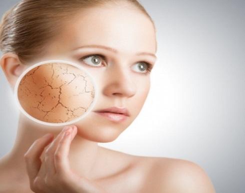 للسيدات .. إليكن علاج مشكلة جفاف الوجه في فصل الشتاء