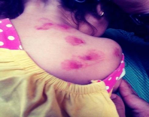 تفاصيل تعذيب طفلة على يد والديها فى كرداسة المصرية