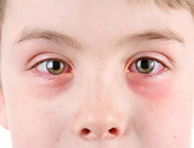 فيروس هربس العين مُعدي 2e83a49d7cdcf898d8284ebc95e18dd9.jpg