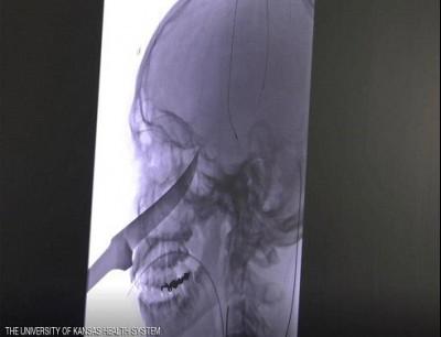 سكين داخل جمجمة مراهق